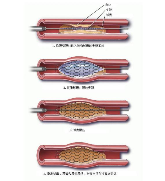 心脏支架功能示意图