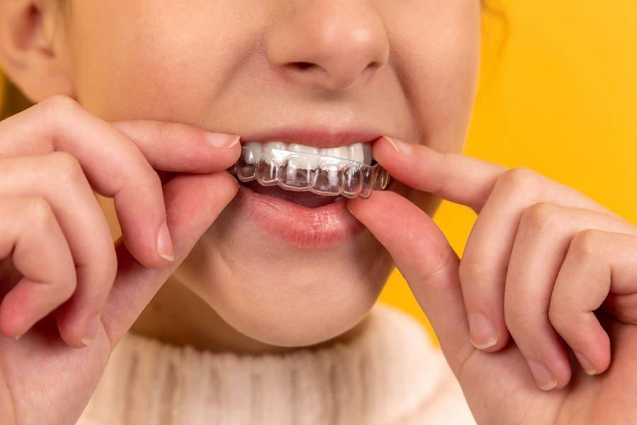 牙齒/口腔/牙套